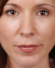 Facelift Surgery | Manhattan | New York City (NYC)