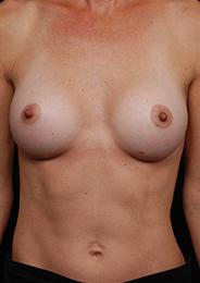 Facelift Surgery | Manhattan | New York City (NYC)